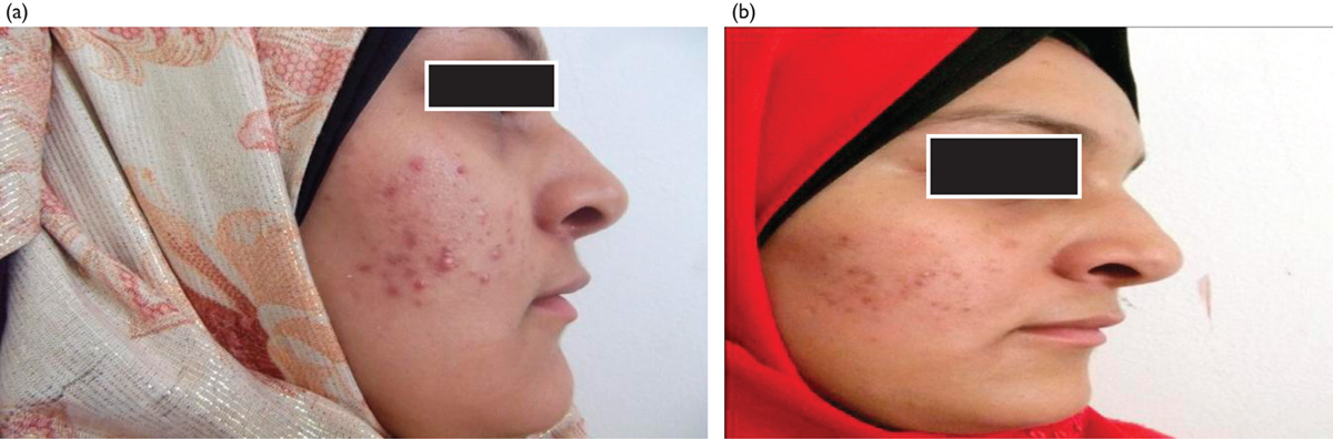 Tretinoin effects