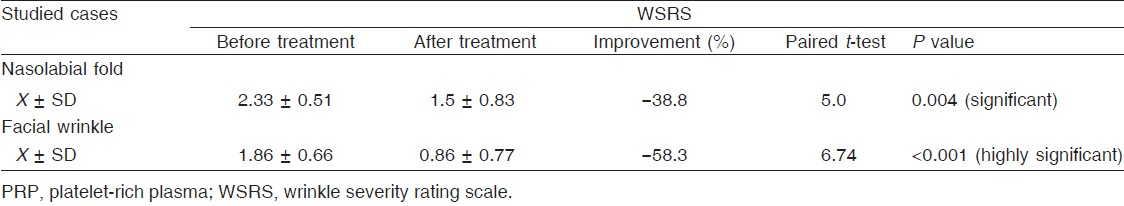 Table 1: Wrinkle severity rating scale before and after PRP injection