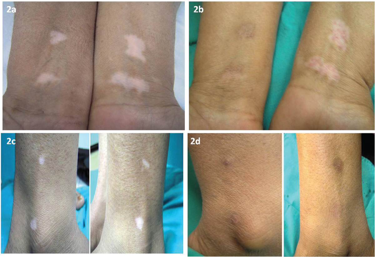 Fgiure 2 A Symmetrical Vitillesions On Forearms Before Treatment B End Results After 4 Months The Clinical Response And Pigmentation Were