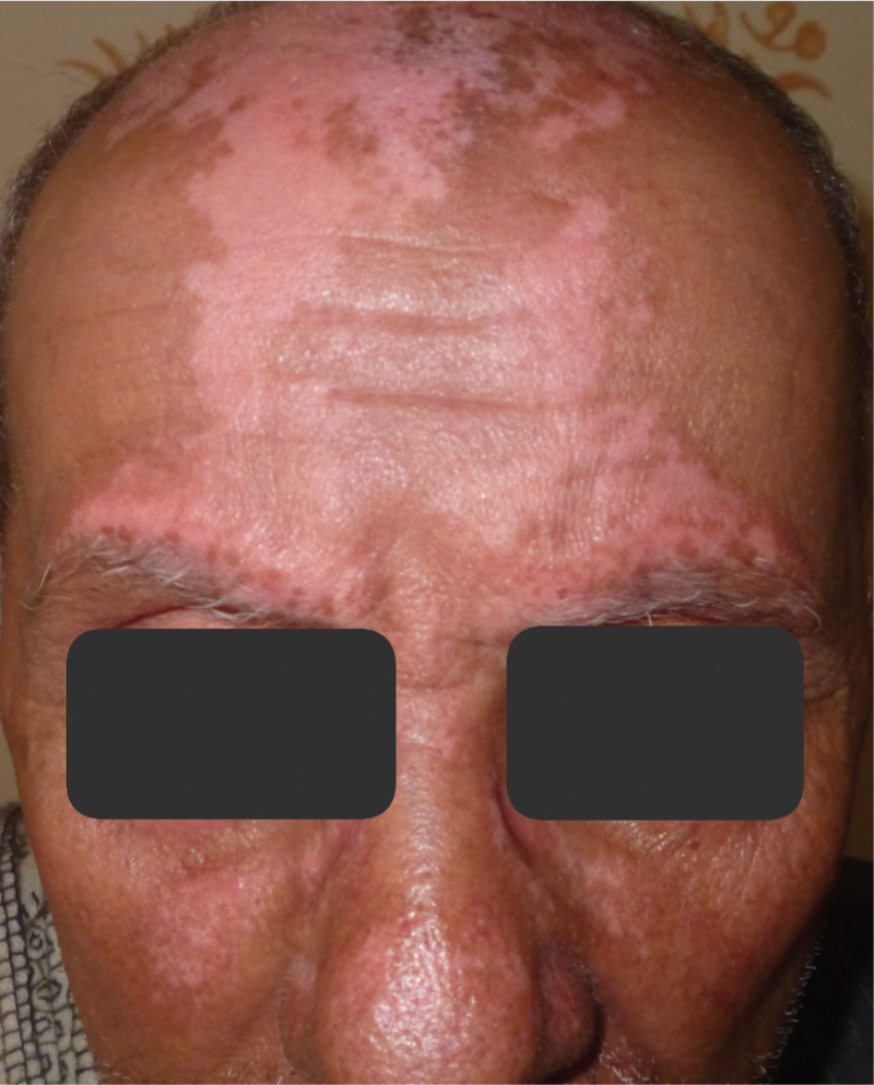 Figure 4 A 72-year-old male patient with vitiligo.