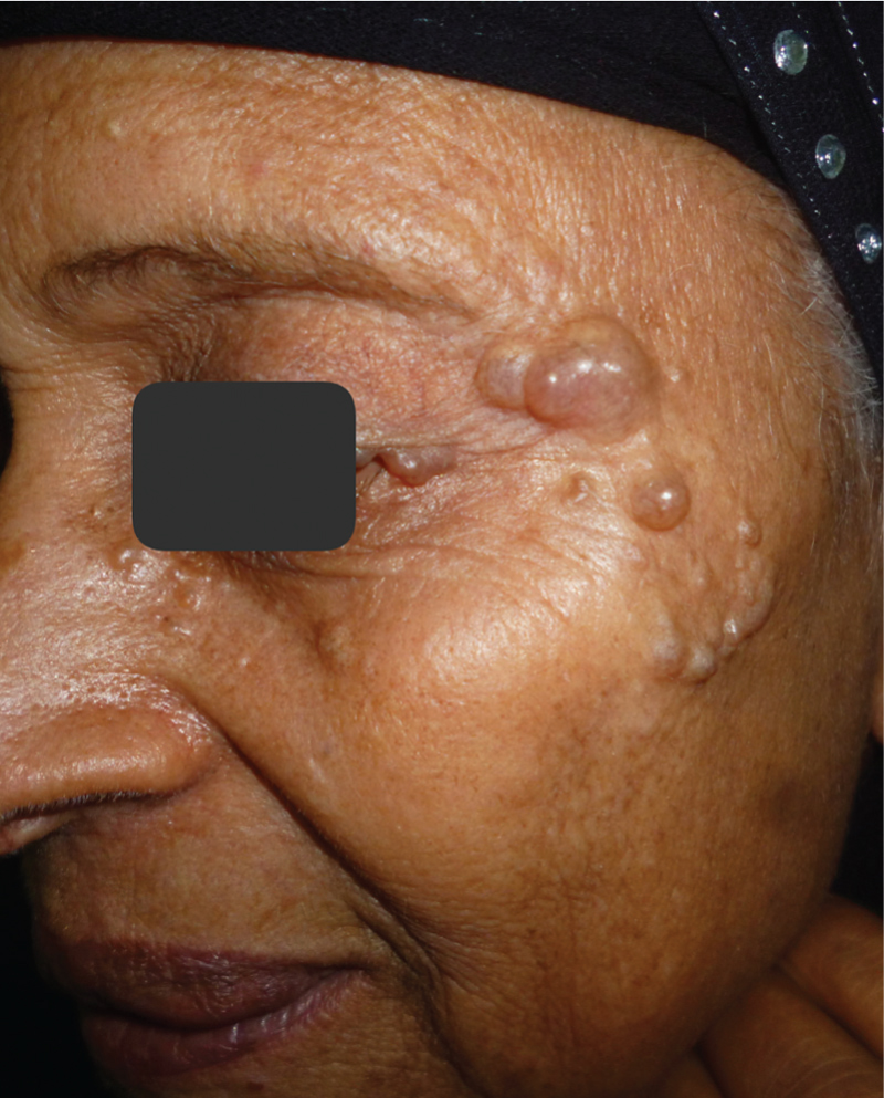 Figure 6 A 70-year-old female patient with hidrocystoma.